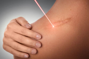 What to Look Out for When Getting Laser Treatment